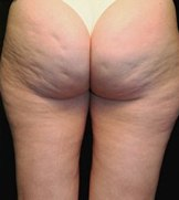 cellulite on the bum how to remove