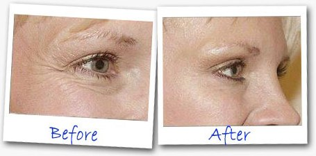 Eye Secrets Under Eye Tightener before and after