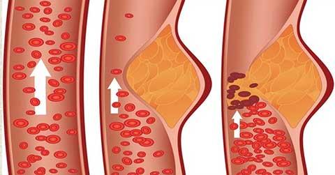 Niacin boosts blood